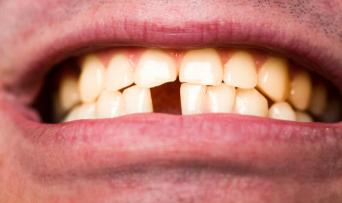 Man-in-need-of-dental-implant