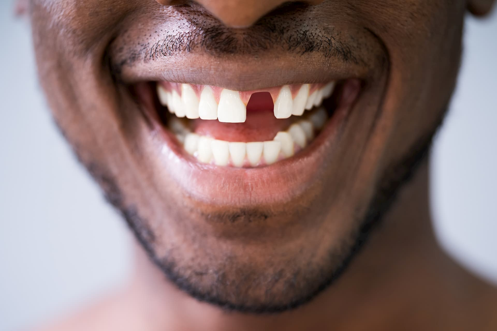 Man-with-missing-front-tooth