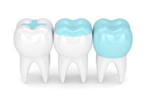 partial-crowns-example