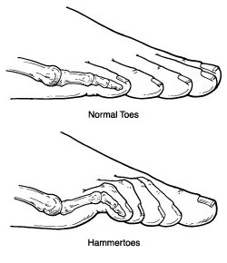 What is Hammertoe