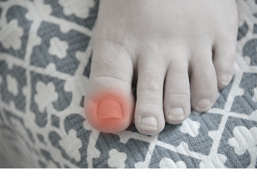 Nail Fungus and Treatment