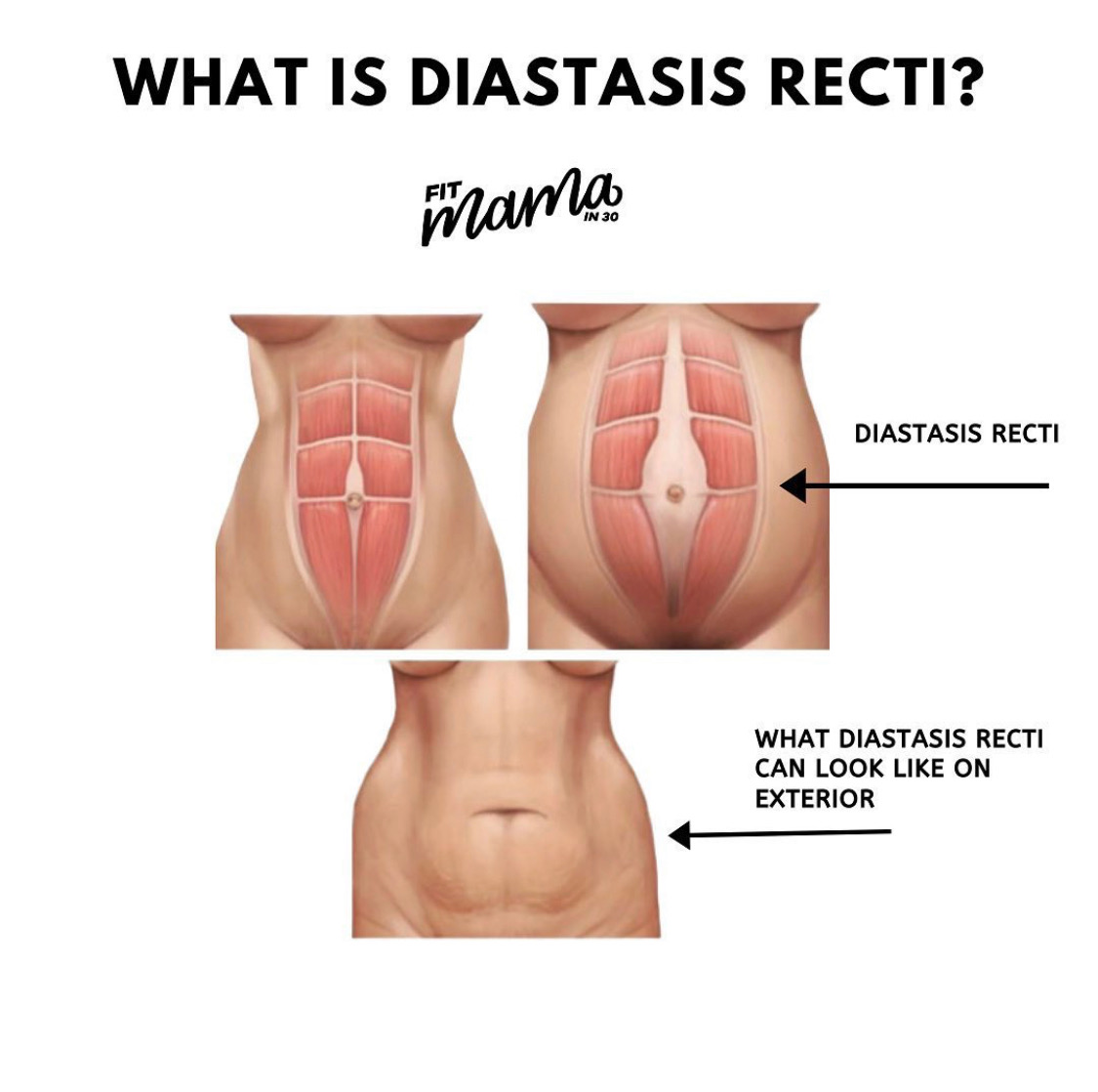 Diastasis Recti & How to Recover From It