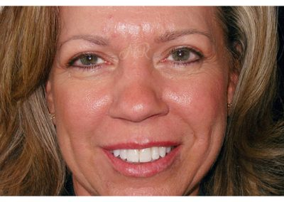 Full Face Permanent Makeup - Kansas City