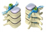 Vertebral Discs Pressure Increased When Seated
