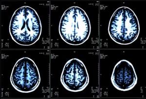 After brain surgery Endonasal Cranial Adjusting by Dr Adam Fields, Chiropractor, San Jose, CA