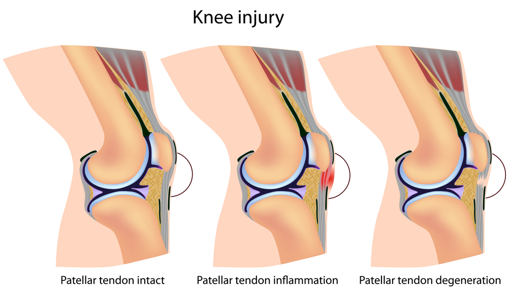 Patellar Tendiopathies can be helped with ESWT