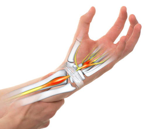 Carpal Tunnel Syndrome helped with ESWT
