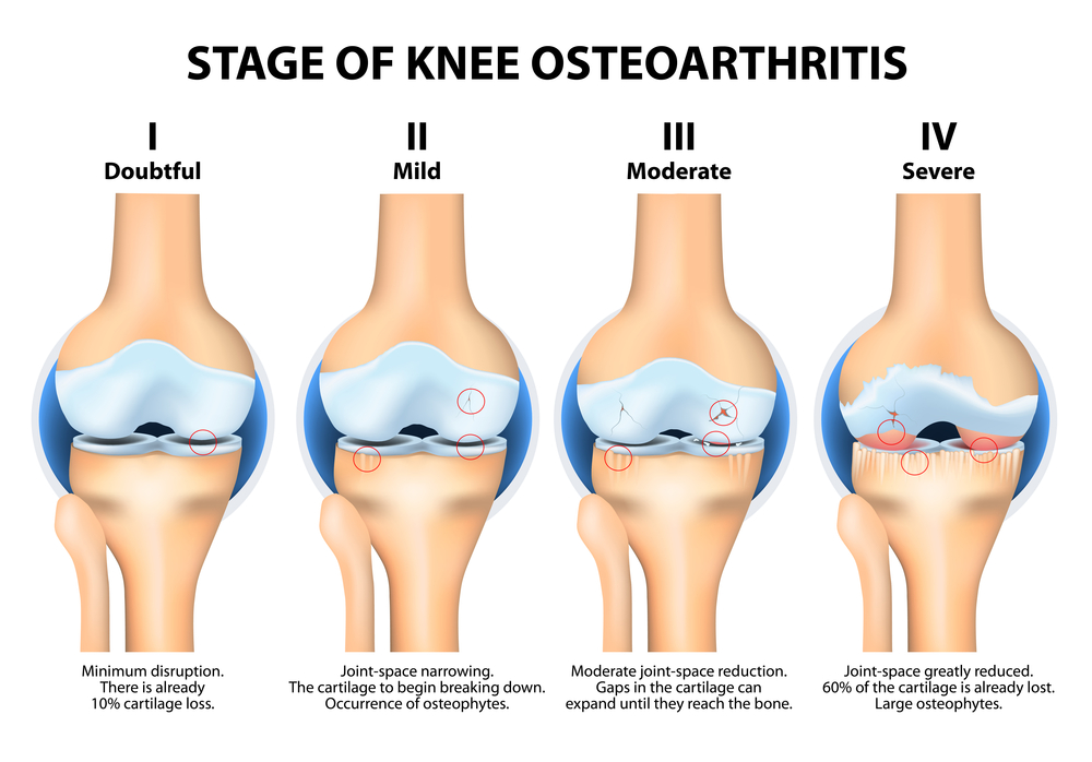 The pain of knee arthritic can be helped with ESWT