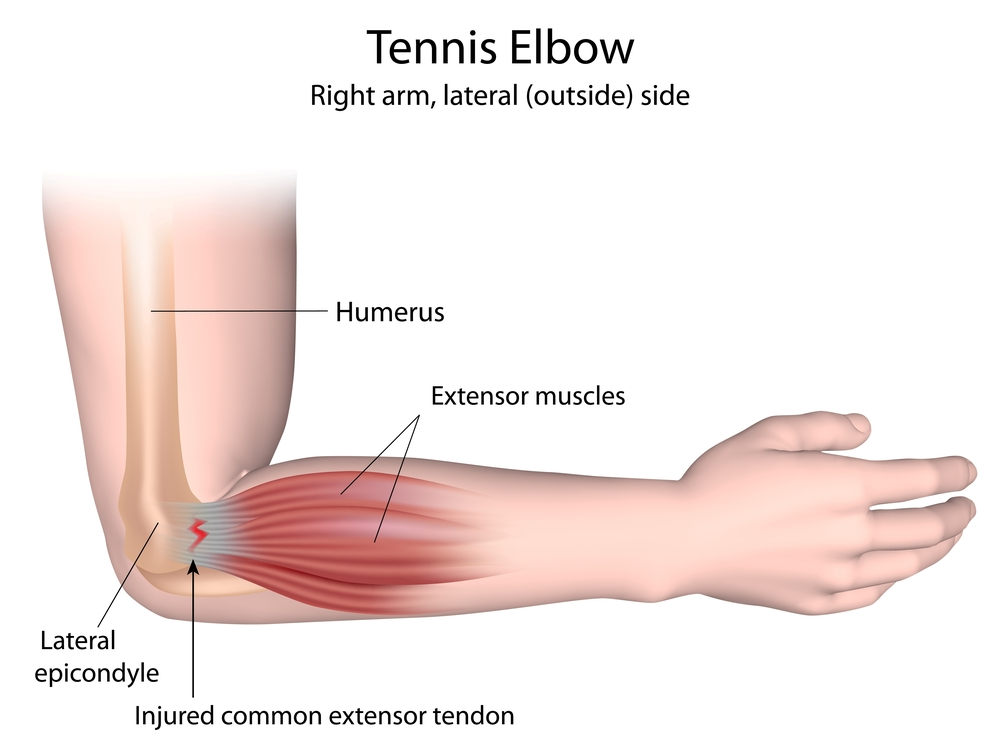 Tennis elbow is now effectively treated with ESWT