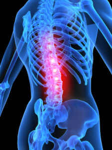 Blue neon spine with pink lumbar vertebrae representing problem areas