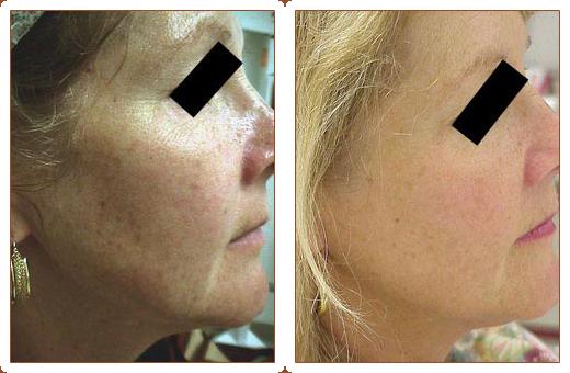 Skin Rejuvination