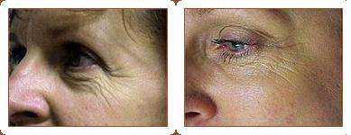 Botox Cosmetic / Xeomin