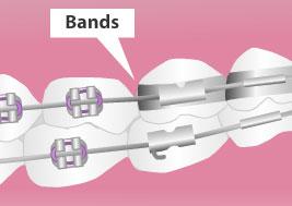 bands braces