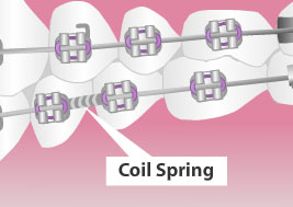 coil springs braces
