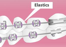 elastics braces