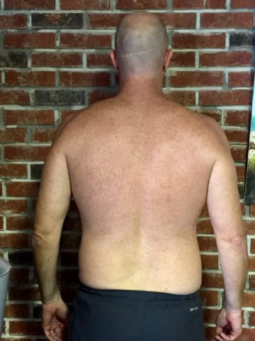 Client Ryan Dick before picture of his back