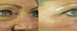 Wrinkles before & after
