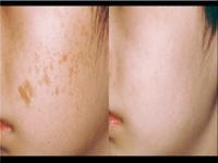 laser-blemish-removal-fort-lauderdale1