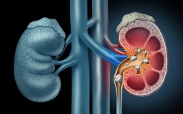 Renal Calculus Stone treatment