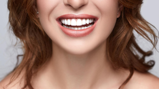 Ways to Keep Your Teeth White - Dental Reflections Dublin