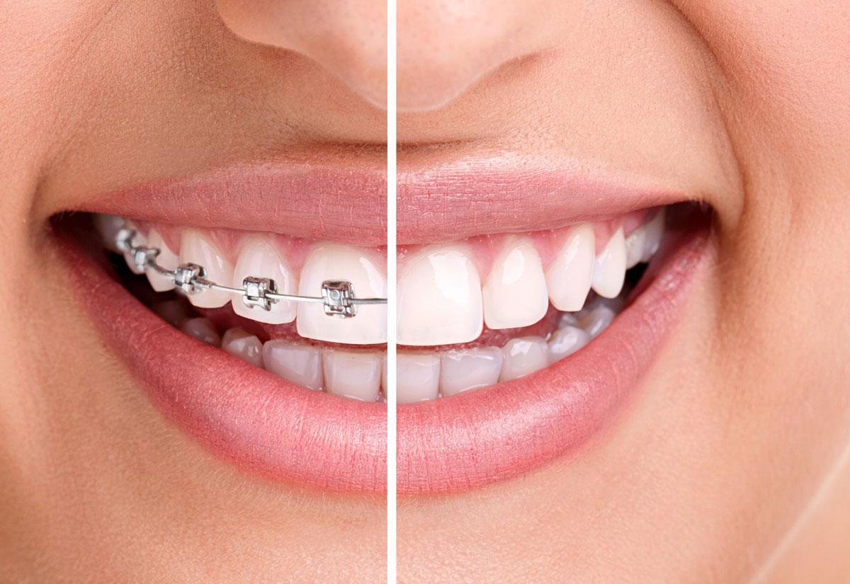Shirley Orthodontics & Pediatric Dentistry   631.928.2655