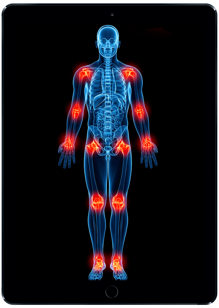 Fibromyalgia Pain Relief, Treatment & Healing