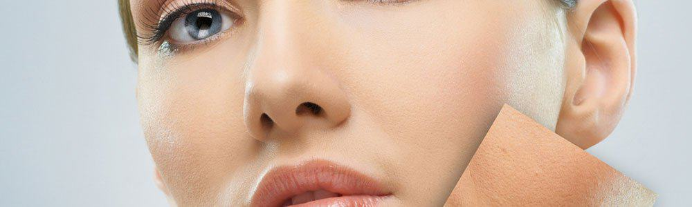 Can You Get Laser Hair Removal On Your Face?