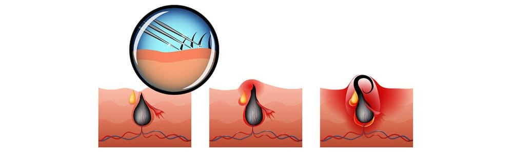 Laser Hair Removal for Ingrown Hair Removal