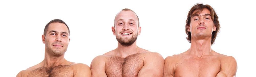 Beard Laser Hair Removal for Men blog post