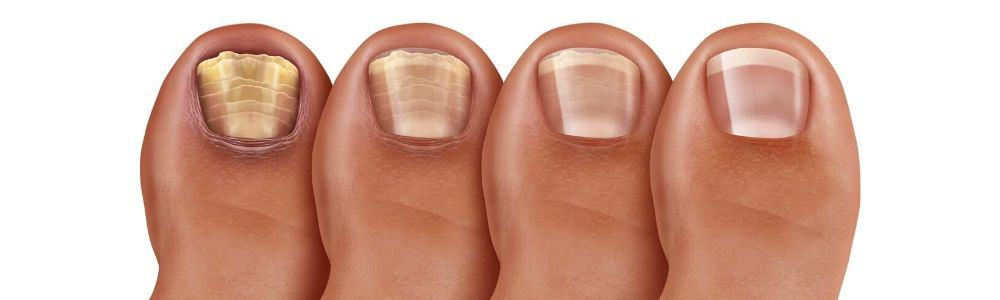 What Is Laser Treatment For Nail Fungus