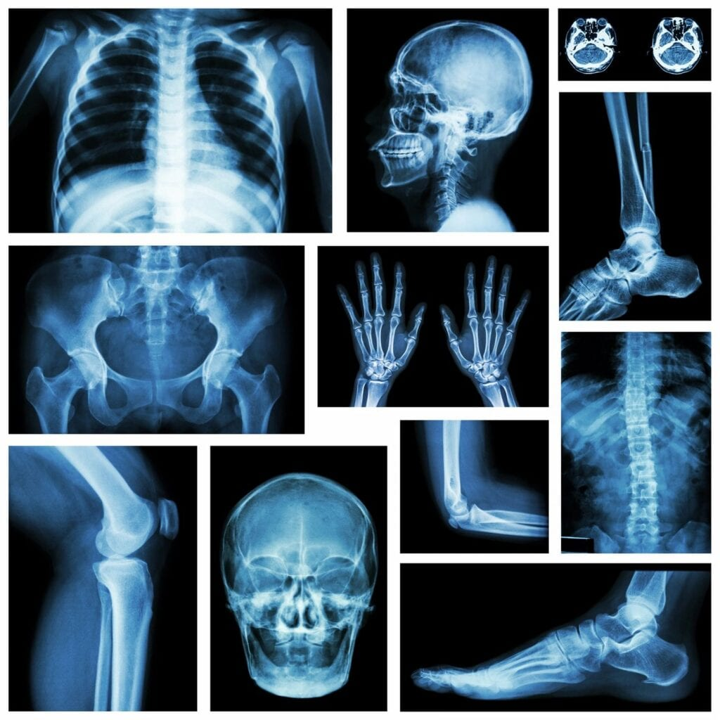 X-ray example of different body parts