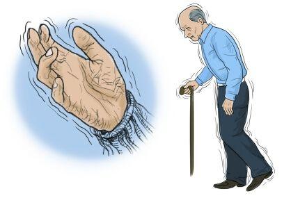 Parkinsons acupuncture Mississauga