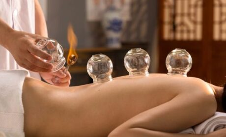 cupping mississauga