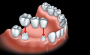 The custom-made artificial tooth is fused to 2 crowns. This is called a bridge.