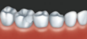 A crown can be used to restore a damaged tooth.