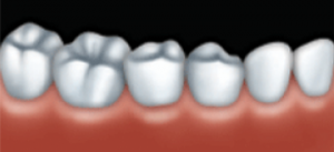 The final crown is cemented into place. It looks and works very much like a natural tooth.