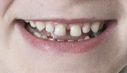 kidsteeth1
