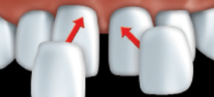 The custom-made porcelaine veneers are glued to your teeth one by one with a composite resin cement.