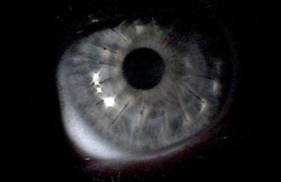 cross linking eye
