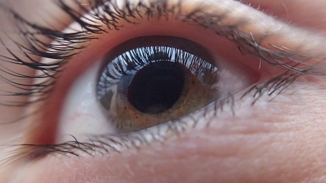 A patient's eye after glaucoma surgery