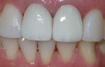 All Ceramic Dental Crowns