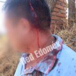 Golpean a vecinos de  Tepatlaxco por construcción irregular de tiradero en Naucalpan