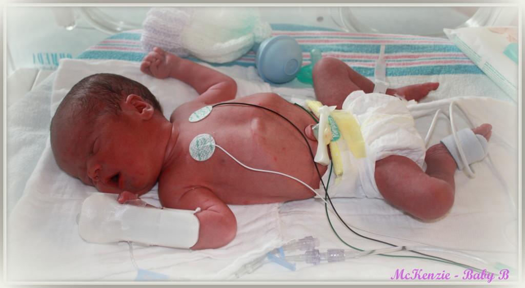 Birth - Twins Baby B 1