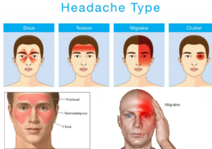 Sinus headaches and Migraine