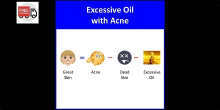 Secret of Aging Excessive Oil with Acne