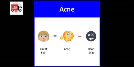 Secret of Aging Acne Skincare Routine with Free Shipping