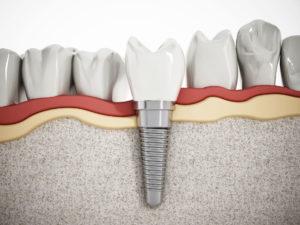 Dental Implants Dental Laser Nogales
