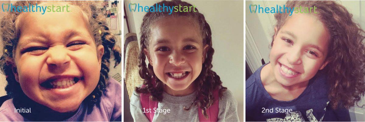 healthy start 4