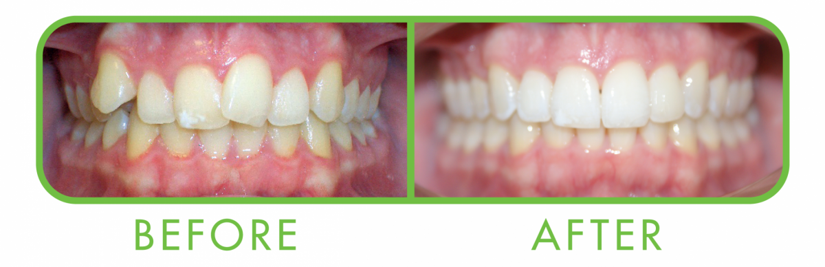 clearcorrect-before-after