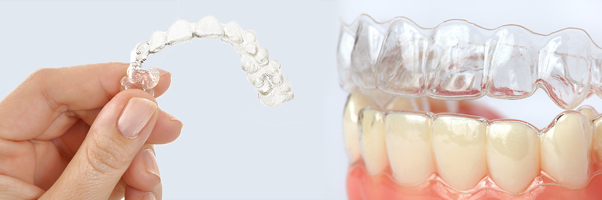 clearcorrect-braces-header